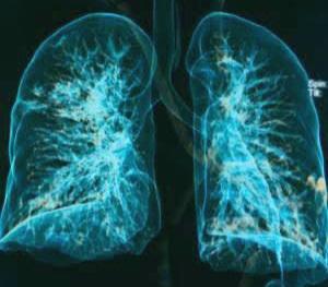 नव्या कोरोना रूग्णांची फुफ्फुसं होतायेत लवकर खराब! रूग्णांच्या छातीच्या एक्स-रे ची स्थिती अतिशय वाईट!